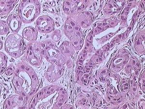 Breast cancer (Infiltrating ductal carcinoma of the breast) dyed with H&E